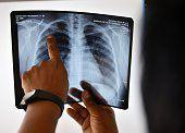 Eine Röntgenaufnahme. Foto: Getty Images