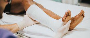 Beinbruch: Die gesetzliche Unfallversicherung zahlt bei Unfällen am Arbeitsplatz.